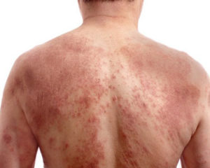 adult male with dermatitis (eczema) on his back