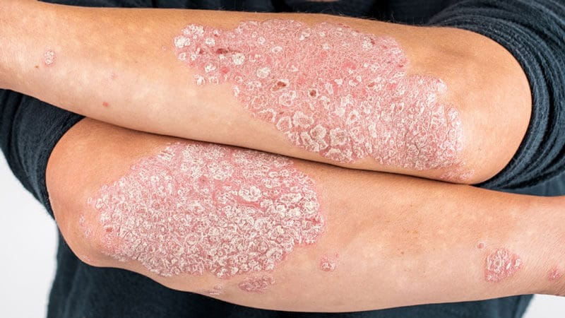 Adult with psoriasis on their arms