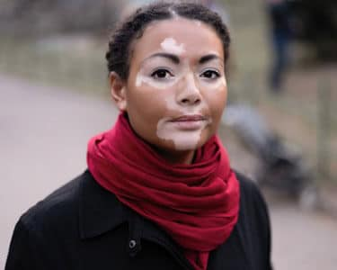 young woman with vitiligo on her face