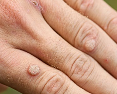 closeup of hand with warts