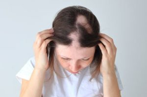 Young girl with Alopecia Areata on her scalp
