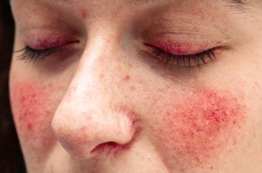 Closeup of Facial Rosacea
