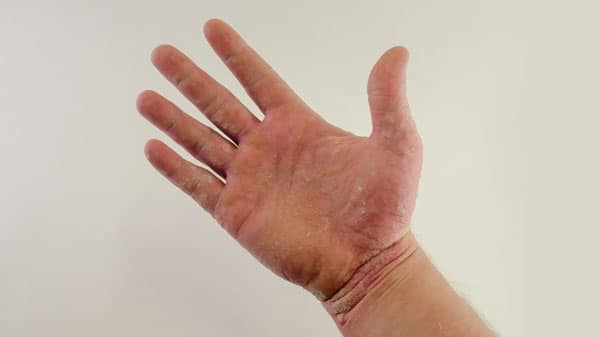 Psoriasis on the palm of a hand