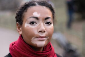 Women diagnosed with vitiligo wearing a red scarf and a black jacket outside